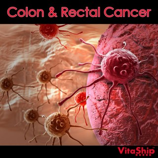 Colon and Rectal Cancer