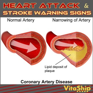 Heart Attack and Stroke Warning Signs